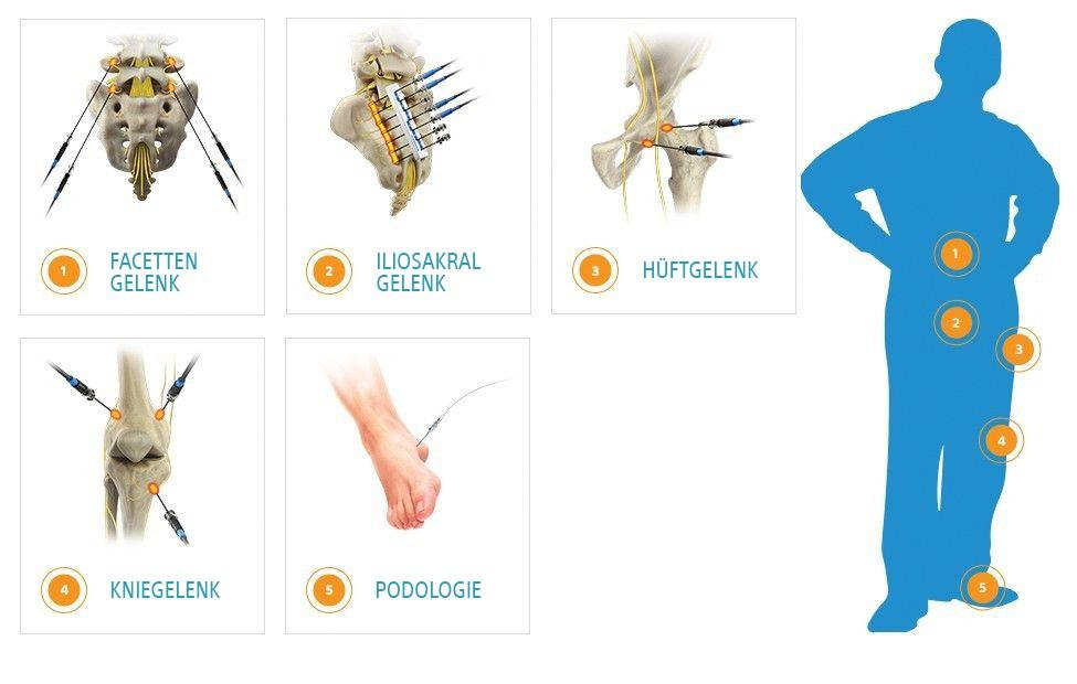 Grafik mit fünf Behandlungsbereichen für den RF-Generator. Facettengelenk. Iliosakralgelenk. Hüftgelenk. Kniegelenk. Podologie.