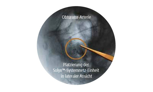 Obturator Arterie