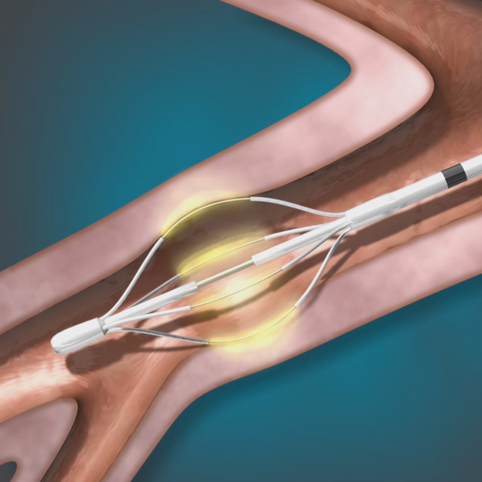 The Alair™ Bronchial Thermoplasty System