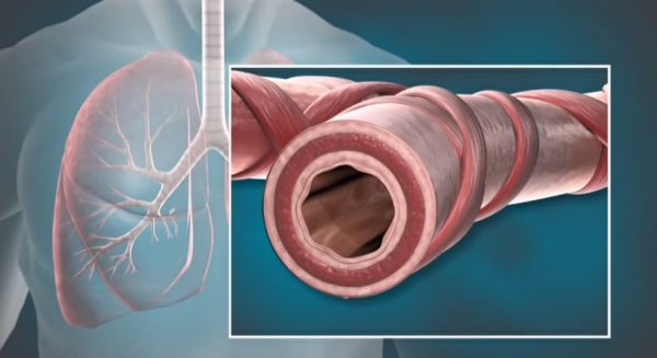 Animation of Bronchial Thermoplasty (BT) with the Alair® System