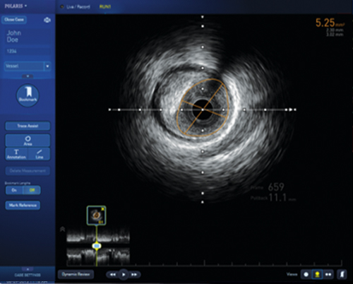 POLARIS IVUS Software Demo