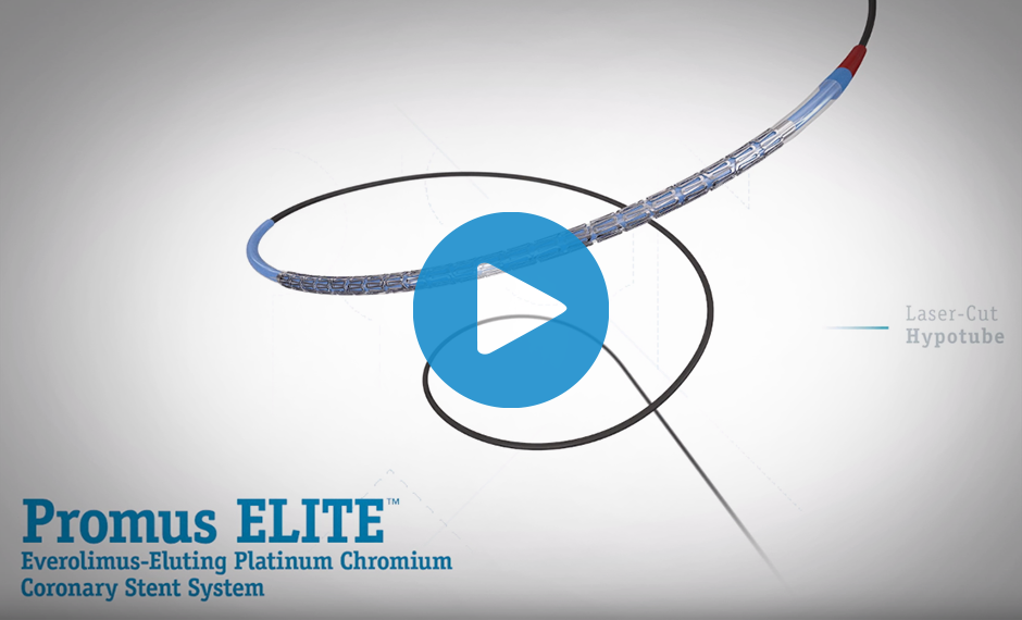 Watch Dr. Ian Meredith share some of the Boston Scientific legacy of innovation in Interventional Cardiology as well as the latest advancement, the Promus ELITE Stent