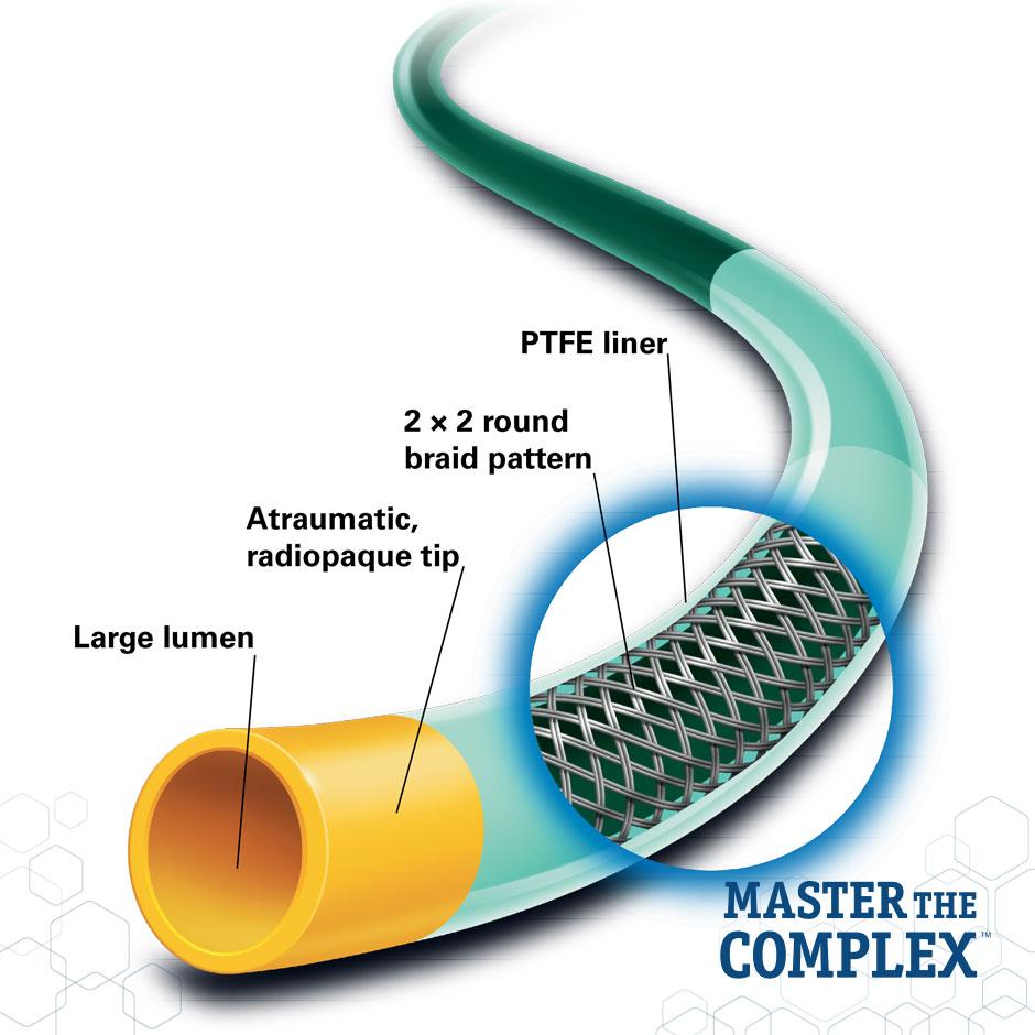 MACH 1™ Guide Catheter - Boston Scientific