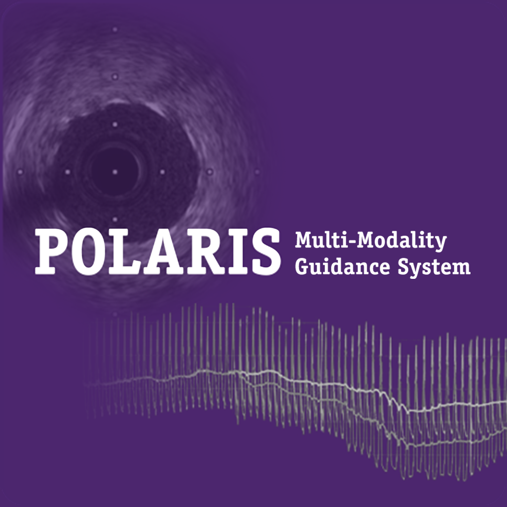 Navigate to better outcomes with the POLARIS Mutli-Modality Guidance System. Use a single system to inform treatment decisions with coronary physiology and IVUS.