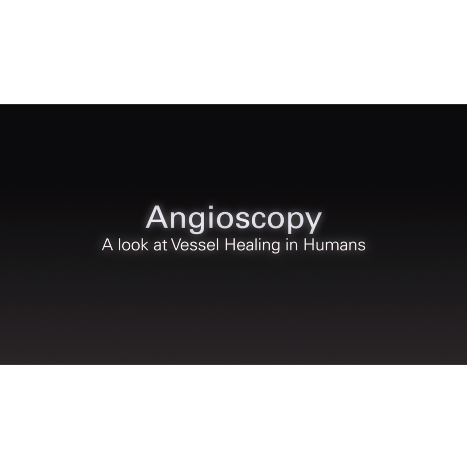 Healing Viewed Through Angioscopy
