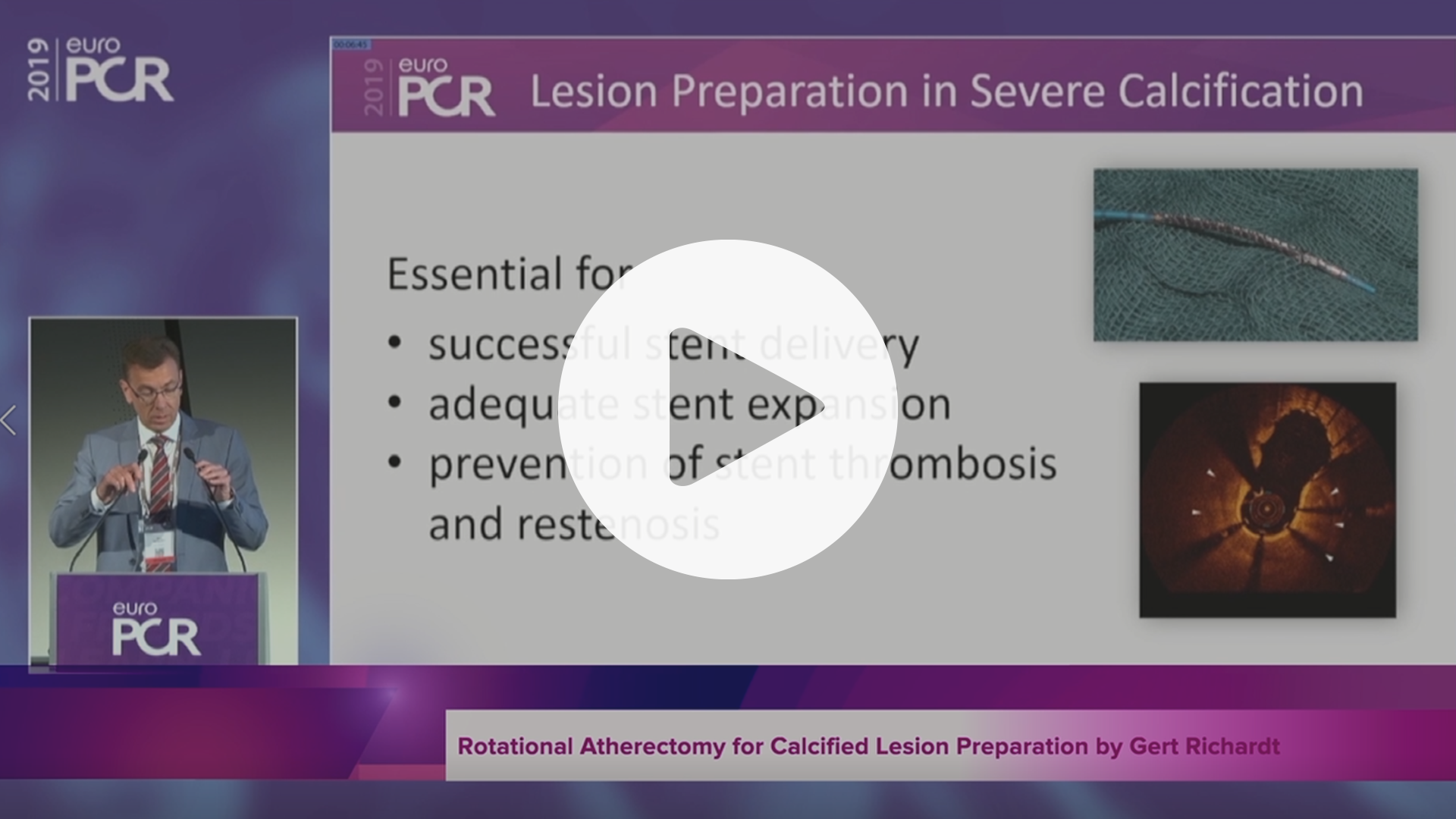 SYNTAX II Rotational Atherectomy for Calcified Lesion Preparation by Gert Richardt, VIdeo