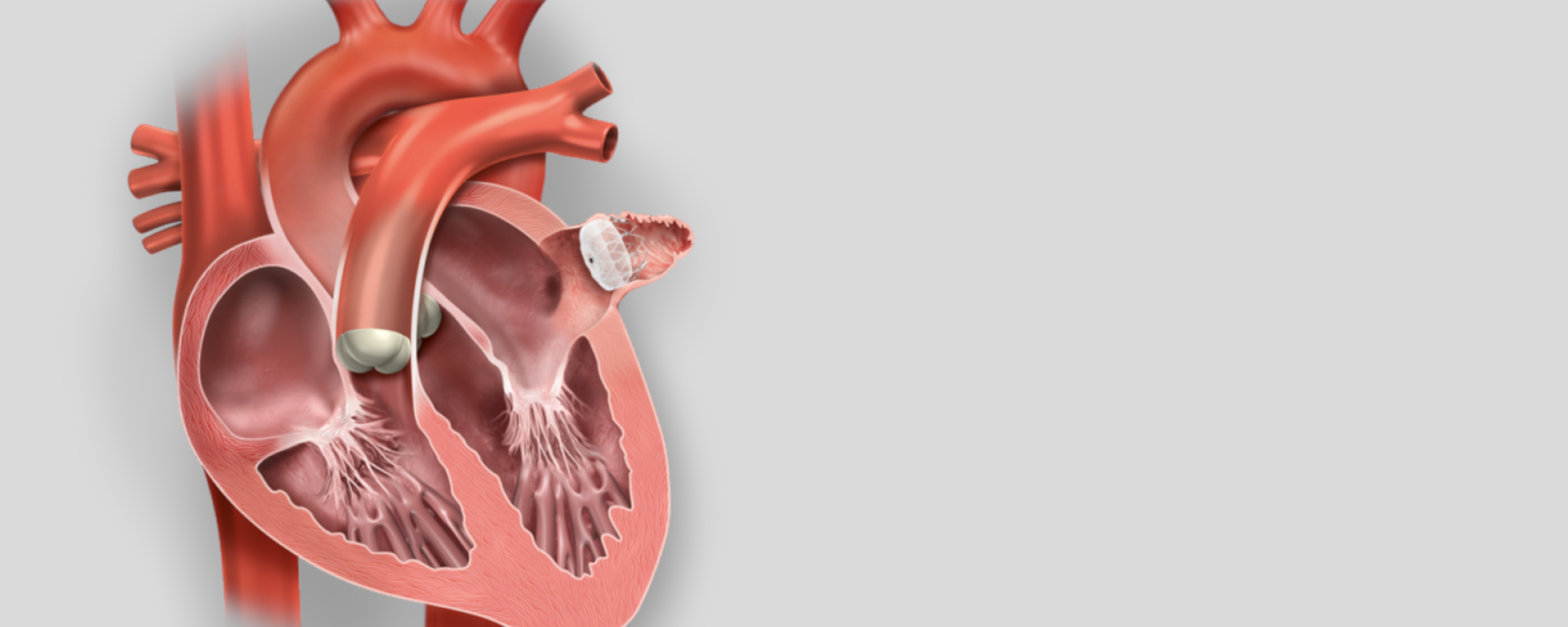 Left Atrial Appendage Closure with the WATCHMAN™ Device
