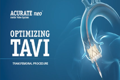 ACURATE <i>neo</i> Aortic Valve System Animation