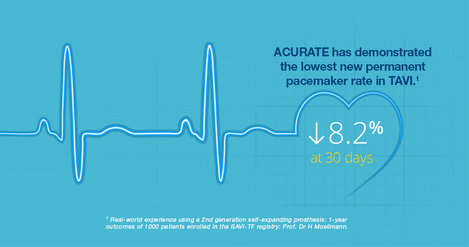 ACURATE neo™ AORTIC VALVE SYSTEM