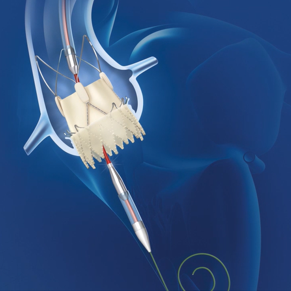 ACURATE neo2™ Aortic Valve System video