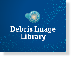 TAVR Procedure Debris Image Library
