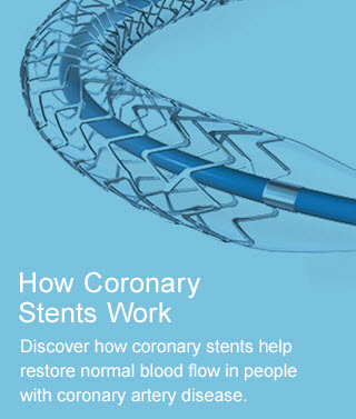 How Coronary Stents Work - Discover how coronary stents help restore normal blood flow in people with coronary artery disease.