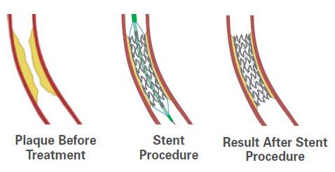 stent treatment for coronary artery disease