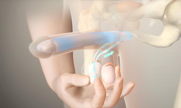 penile implant reviews