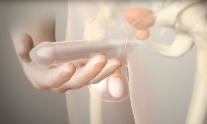 animation video showing how the Spectra penile implant works