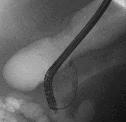 Procedure image 4