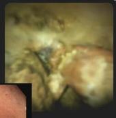 Haber procedure image 3