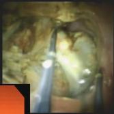 Haber procedure image 4