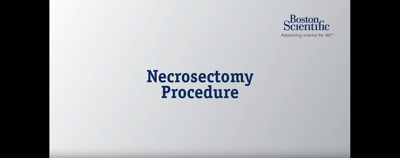 Necrosectomy Procedure