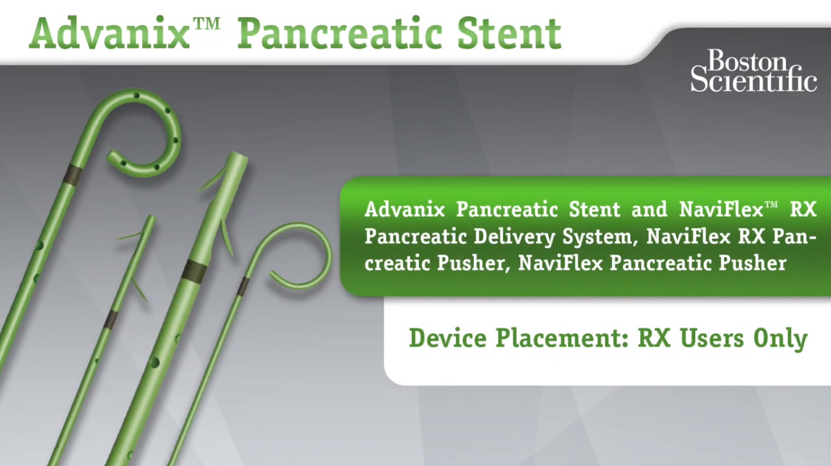 Advanix™ Pancreatic Stent Device Placement - RX Users Only