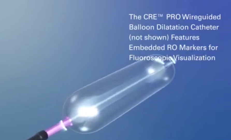 CRE™ Balloon Dilatation Catheter and Alliance™ II Integrated Inflation/Lithotripsy Device