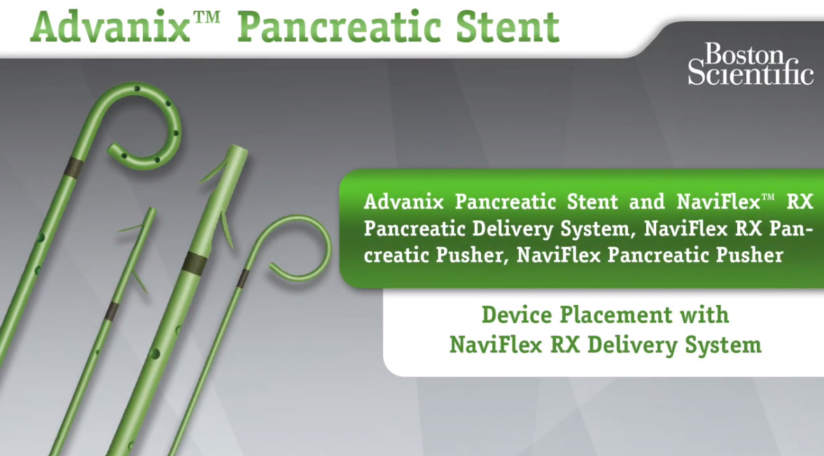 NaviFlex™ RX Delivery System Device Placement