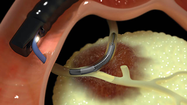 Habib Animation in Stricture