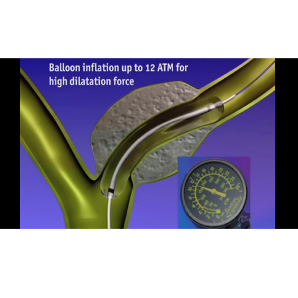 Animation shows inflation of balloon and use with compatible RX devices