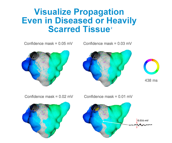 High-definition maps show how RHYTHMIA helps you visualize propagation even in diseased or heavily scarred tissue.
