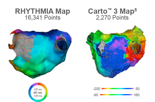In one study, the RHYTHMIA HDx mapping system generated 16,341 points compared to 2,270 points generated by Carto® 3.5