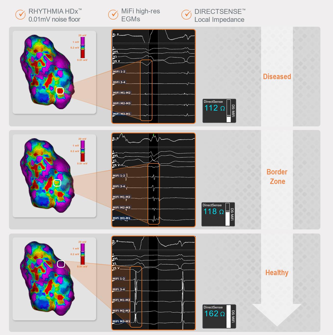 Cardiac Arrhythmia Mapping System