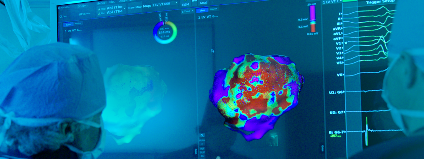 Physicians review high-definition cardiac maps using the RHYTHMIA HDx Mapping System