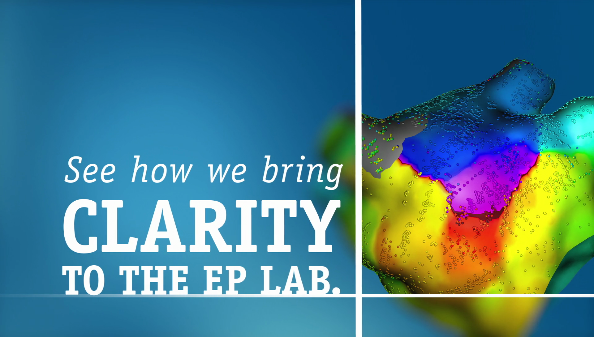 See how we bring CLARITY to the EP lab.