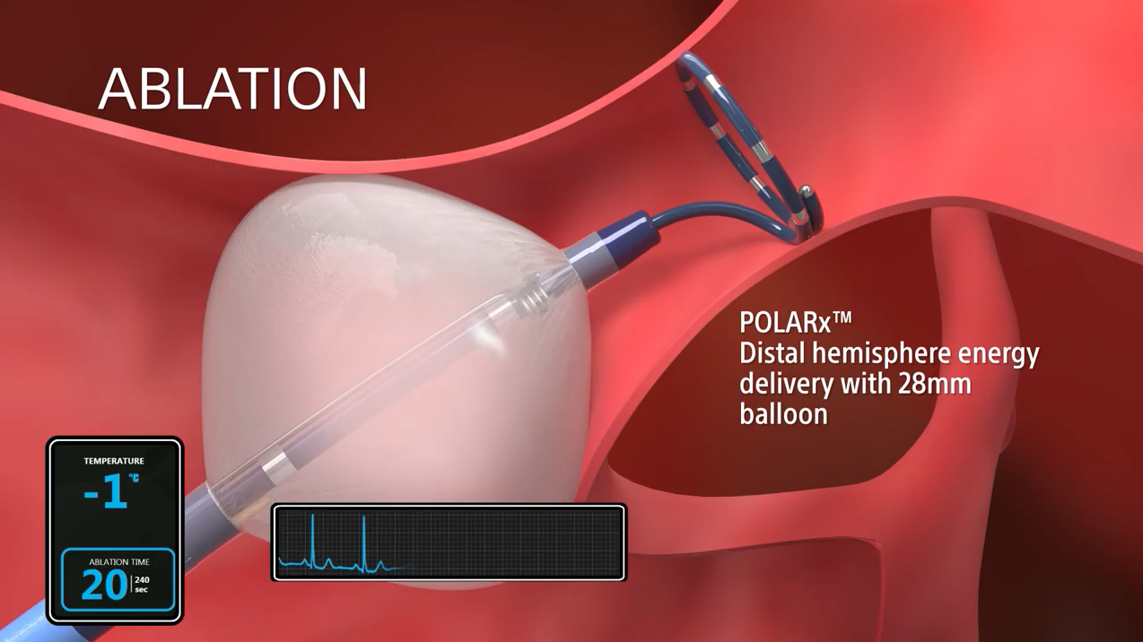 POLARx balloon catheter video animation