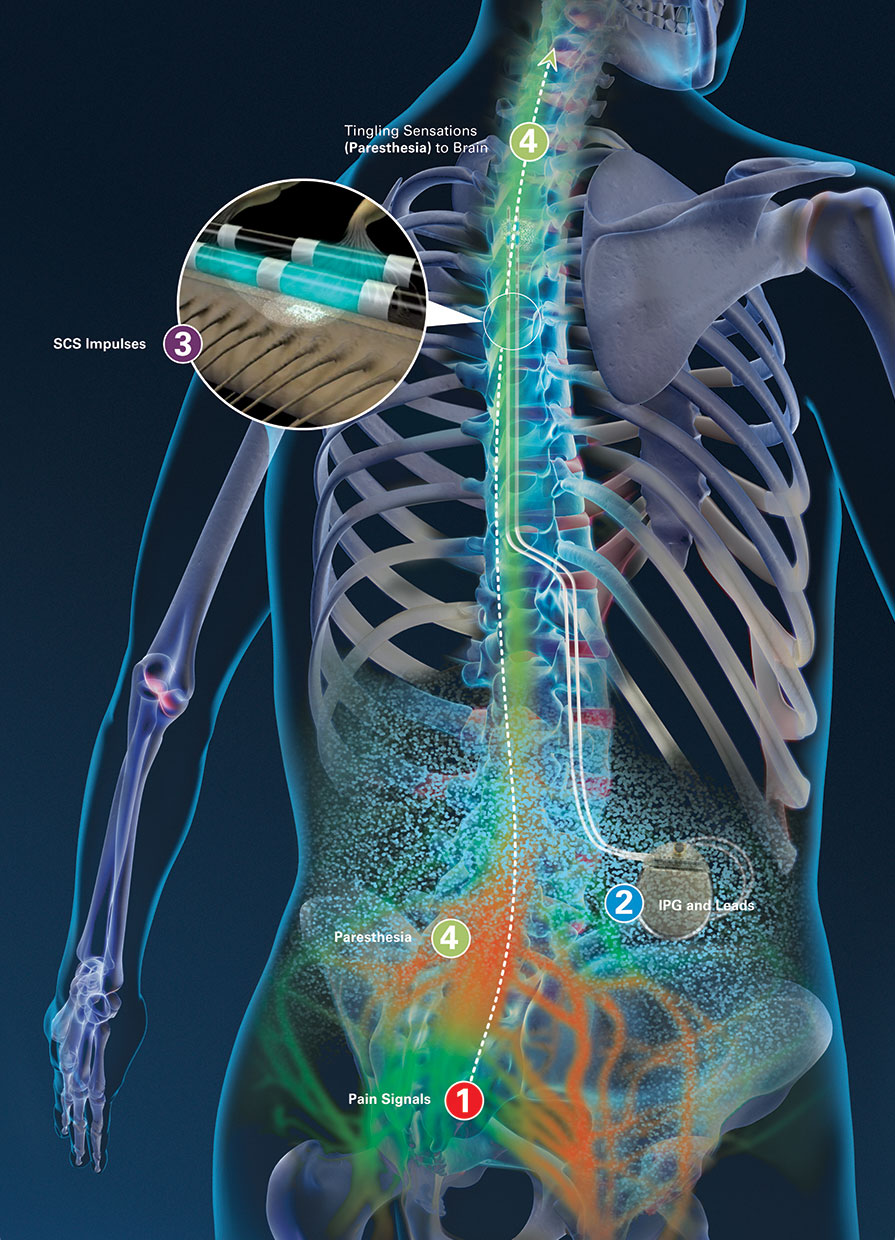 About Spinal Cord Stimulation