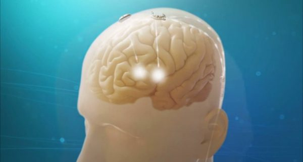 Vercise™ Deep Brain Stimulation System
