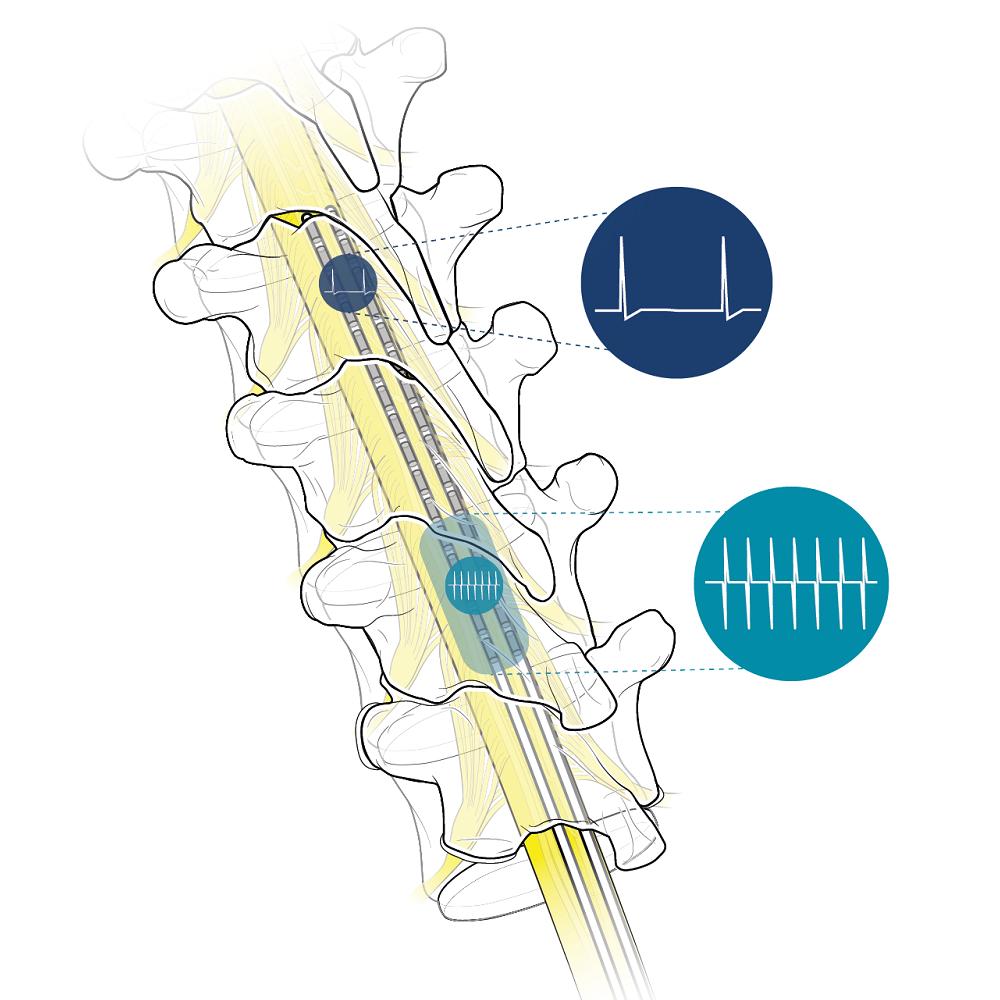 Combination Therapy – Spectra WaveWriter™ SCS System - Boston Scientific