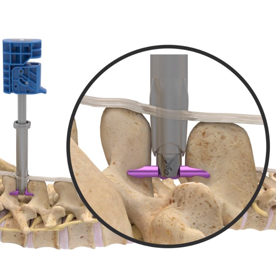 The Vertiflex™ Procedure† with Superion™ Indirect Decompression System Video