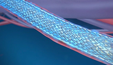 Animation showing how the Eluvia Drug-Eluting Stent was designed to match the unique needs of the SFA.