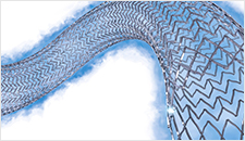 Downloadable image of the Eluvia Drug-Eluting Stent on a white background.