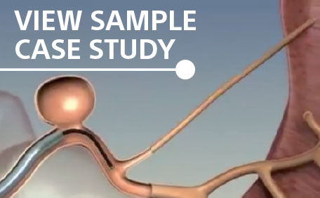 View Sample Case Study