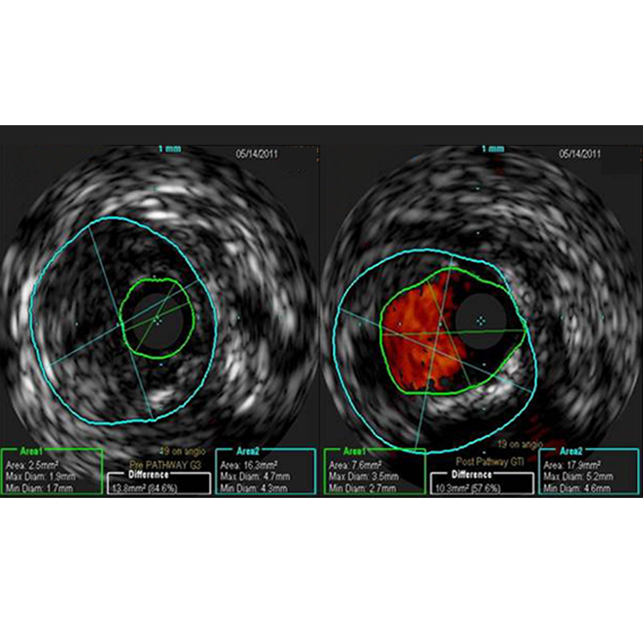 Dr. Thomas Shimshak perspective: consider using IVUS as a means of understanding the benefit of atherectomy