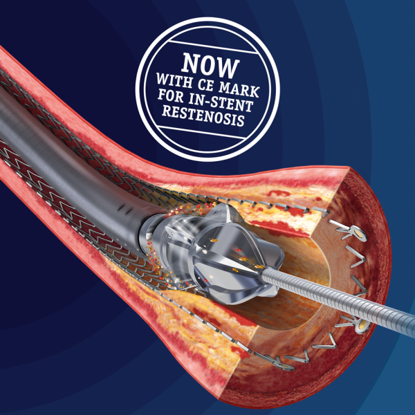 Jetstream Atherectomy System: Now with CE Mark