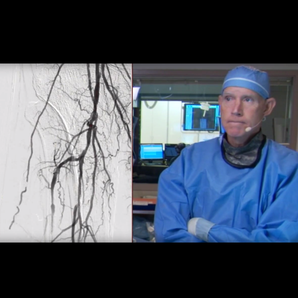 Watch Single Vessel Revascularization Using Rotablator Atherectomy in a CLI Patient