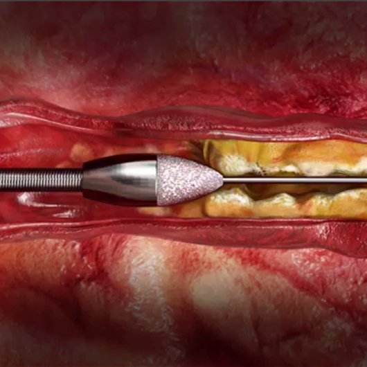 See the Peripheral Rotablator Atherectomy System Mechanism of Action