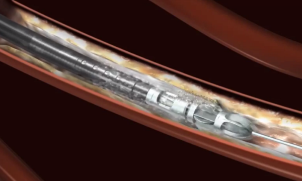 Jetstream Atherectomy Mechanism of Action animation