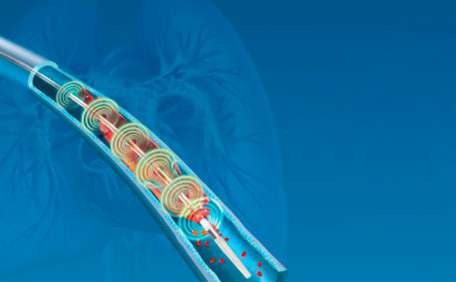 EKOS™ Acoustic Pulse Thrombolysis Treatment