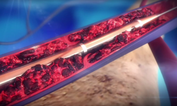 ZelanteDVT deep vein thrombosis animation