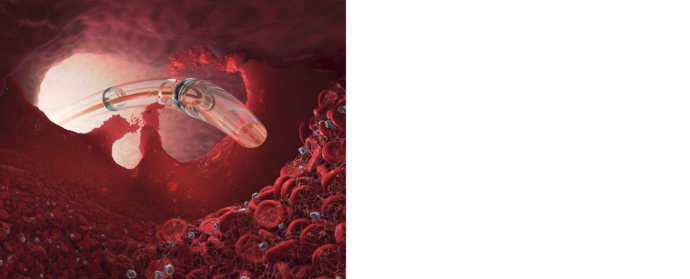 Learn more about AngioJet™ ZelanteDVT™ Thrombectomy Catheter