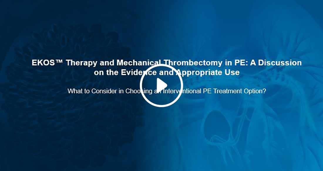 EKOS Therapy and Mechanical Thrombectomy in PE - webinar.